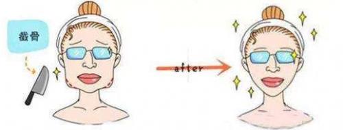 你对下颌骨截骨有多了解?有哪些注意点?