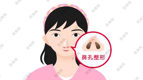 鼻孔整形的适应症及手术方式
