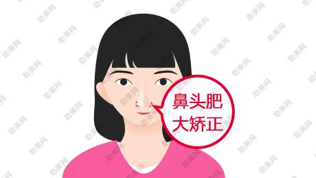 鼻头缩小术的具体操作方式