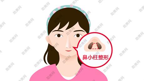 鼻小柱整形手术要遵循什么原则