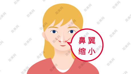 鼻翼缩小术的手术过程,多久才能恢复