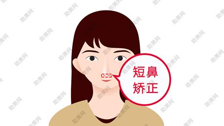 短鼻延长的美学标准及手术方法