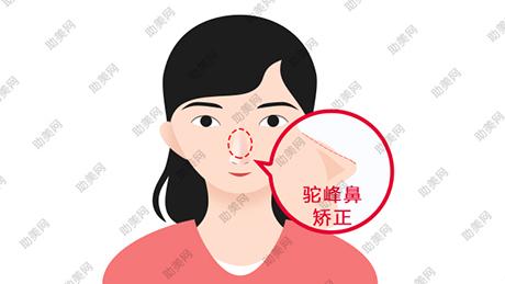 驼峰鼻矫正的手术方法及术后危险