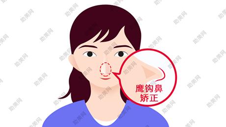 鹰钩鼻矫正手术的禁忌及手术方法