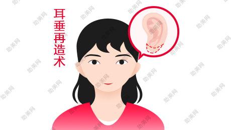 番禺耳垂畸形修复方法是啥