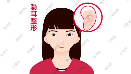 隐耳整形方式及手术适应症有哪些