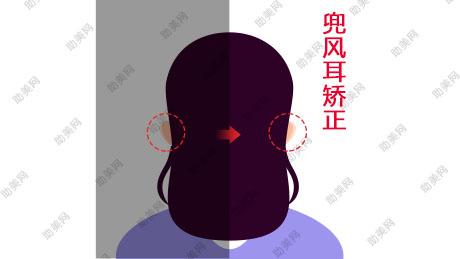 兜风耳矫正治疗的方法和护理