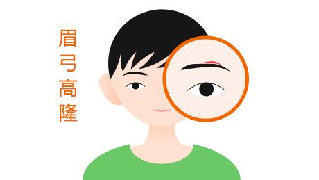 隆眉弓术的步骤及恢复时间