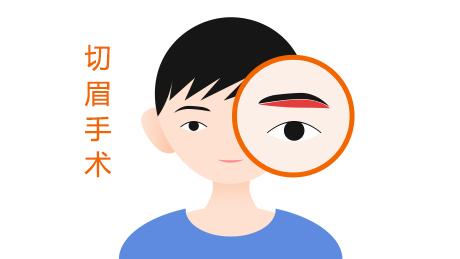 切眉术的手术方式有哪几种呢