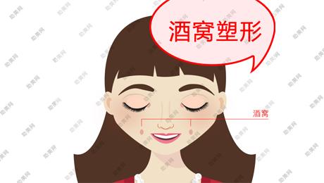 上海名颜酒窝成形术后护理重要吗?