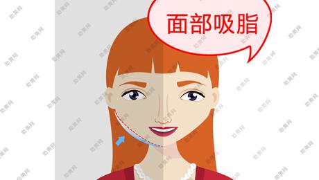 面部吸脂的手术特点及并发症