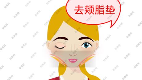 去颊脂垫适用情况及手术方法如何