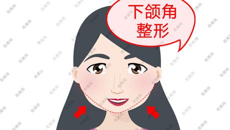 下颌角整形的优势及手术的安全因素