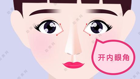 开眼角的危害,开眼角术后多久恢复