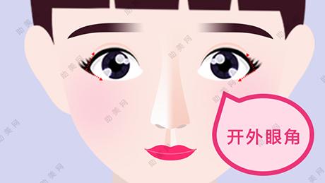 开眼角手术过程,有哪些适应对象
