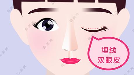 影响埋线双眼皮时效性的因素