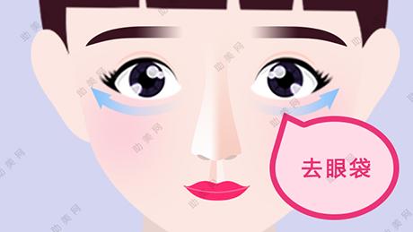 医学去除眼袋的方法及护理