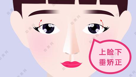 眼皮松弛下垂的矫正手术及效果如何