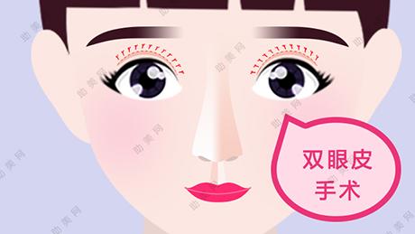 眼睛一单一双是做手术还是贴双眼皮