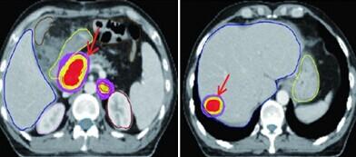 胰腺癌转移与扩散还能治吗