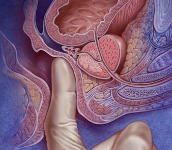 前列腺癌为何要选择射波刀