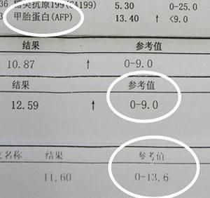 甲胎蛋白不是肝癌专有指标