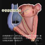 如何处理导管消融术后复发?