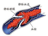 深静脉血栓形成三个重要因素