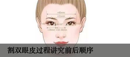 割双眼皮过程讲究前后顺序
