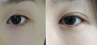 韩式双眼皮术后要多久康复