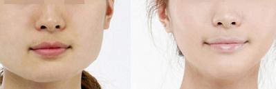 面部吸脂是否有危险存在?