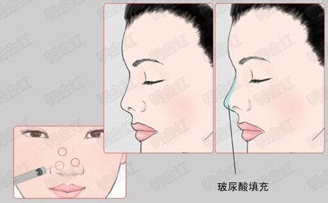 玻尿酸注射隆鼻过程(组图)