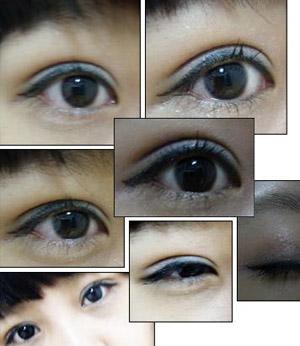 双眼皮埋线法恢复期可以口服抗菌素预防感染