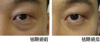 祛眼袋手术后哭了