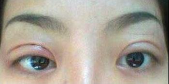 韩式三点双眼皮恢复照 组图