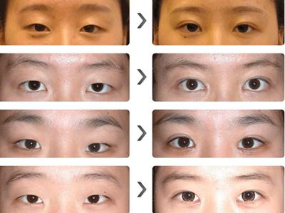 埋线双眼皮图片前后效果对比