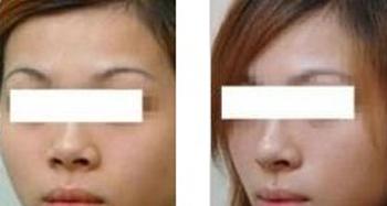 鼻子整形前后对比图明显吗图片
