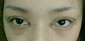压双眼皮 抽脂 内眼角恢复照