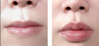 唇珠成形术前后对比照