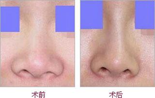 硅胶隆鼻后鼻头肿了