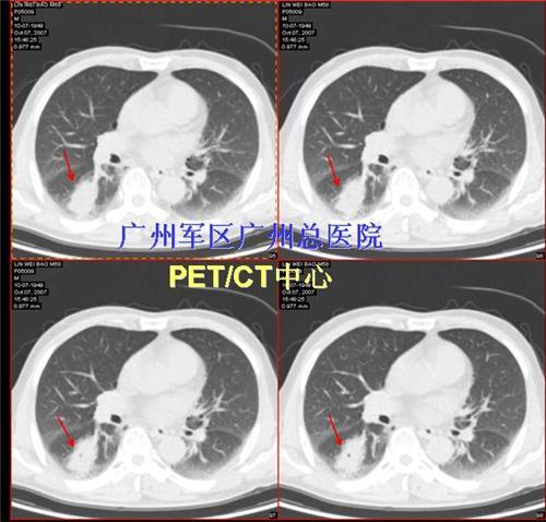 口腔ct扫描控制电路图