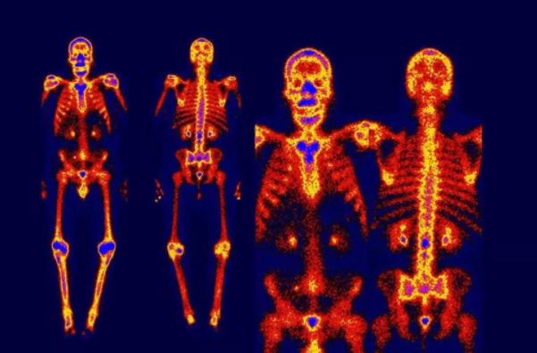 骨扫描和全身petct?