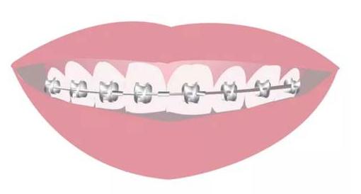牙齿正畸后遗症之矫正结束过两年牙齿就会反弹回去吗?
