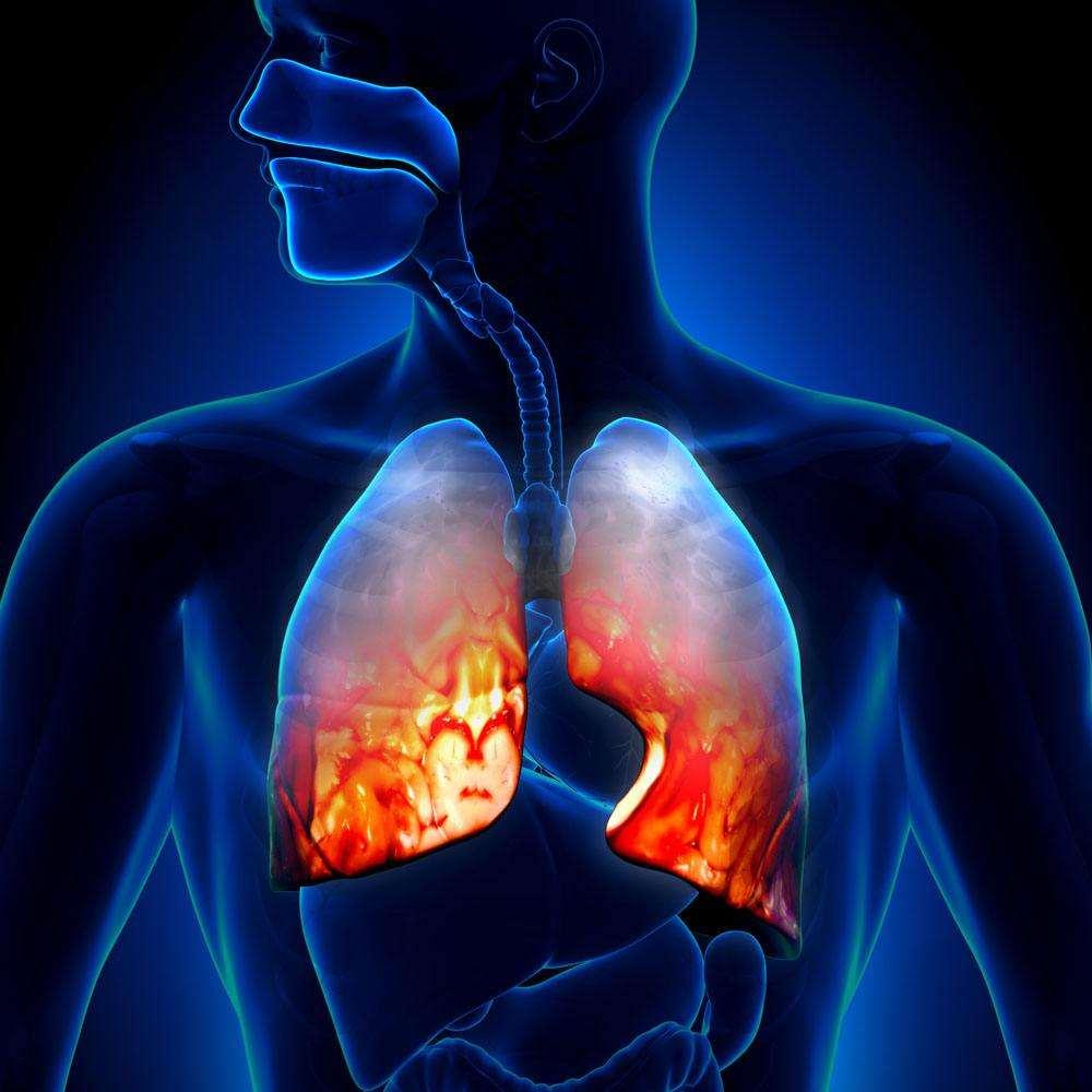 肺部病灶炎症还是癌症,你可分得清肺炎和肺癌?