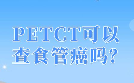 petct可以检查消化道的肿瘤吗?