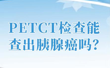 重庆市肿瘤医院PET-CT中心PETCT检查显像对胰腺癌的诊断价值有哪些?